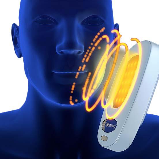 Aplicador de Biomag de luz pulsada sobre una cara