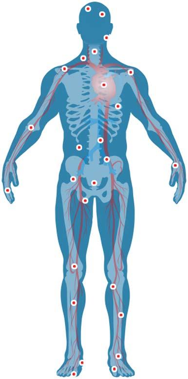 cuerpo humano con patologías